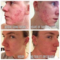 Vegan Detox Caused Bloutchy Itchy Skin by 1000 Images About Foodist Before And After On