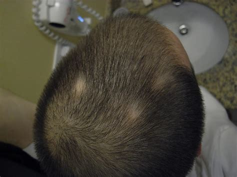 bald spot on small bald spots on scalp things you didn t