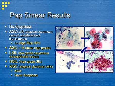 pap test metaplasia ppt management of abnormal pap smears and cervical