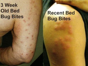 do bed bugs bite everyone bed bug elimination