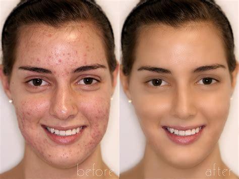 adobe photoshop tutorial face retouching basic photoshop retouching tutorial acne and redness