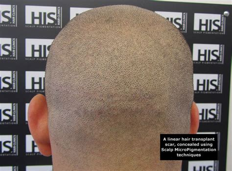 scalp micropigmentation hair tattoo for bald men his