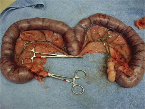 stitches in uterus after c section how to mate your bitch how to diagnose pregnancy and