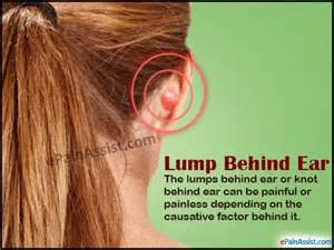 Lump behind ear or knot behind ear causes treatment diagnosis