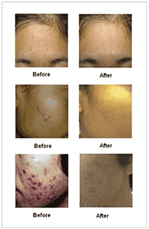 blue light cystic acne blue light therapy for cystic acne