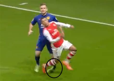 arsenal hoofoot luke shaw leaves emirates in protective boot