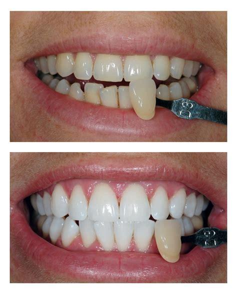 teeth whitening bromley  smiles dental tooth