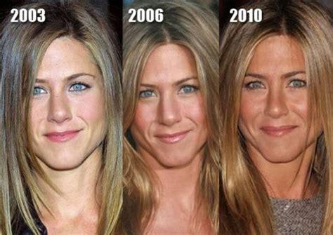 celebrity plastic surgery blog celeb surgery pics celebrity plastic surgery before after 56 pics