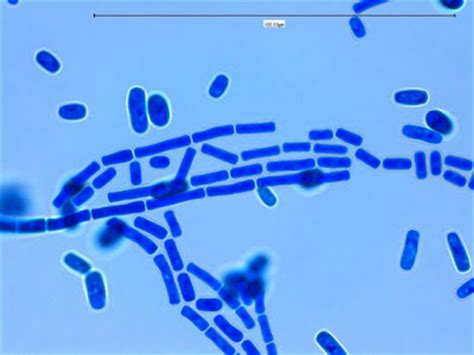 fun with microbiology (what's buggin' you?): geotrichum