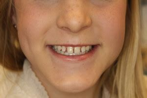 gap  front teeth southpointe dental lincolns