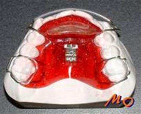 apparecchio ortodontico mobile ortodonzia mobile appunti
