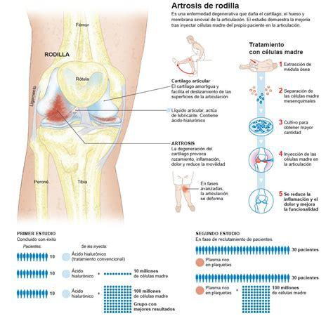 alimentos artrosis artrosis de rodilla tratamiento c 233 lulas madre