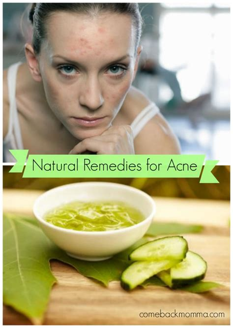 top three homeopathic remedies for acne homeopathic acne natural remedies for acne comeback momma