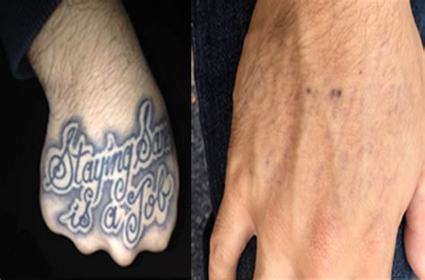 long island tattoo removal li removal island evan b shapiro m d