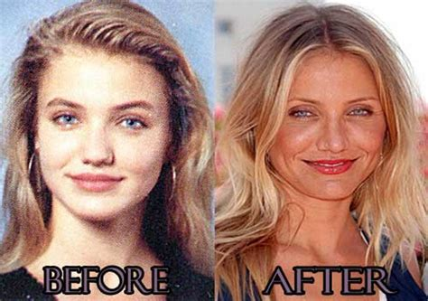 plastic surgery gone wrong cameron diaz plastic surgery gone wrong plastic surgery