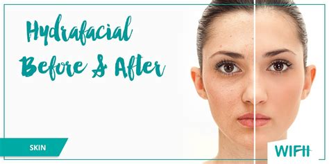 hydrafacial before and after photos amp treatment overview