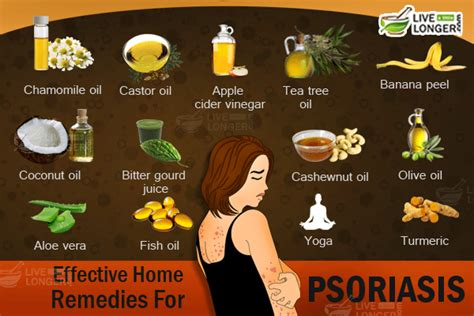 psoriasis treatment simple home remedies to