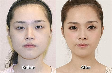Korean Plastic Surgery Meme - 31 crazy before and after photos of korean plastic surgery