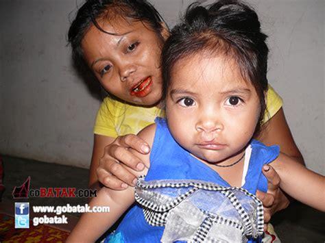 Kaos Harapan Jaya pasien bibir sumbing harapan jaya children of sumatera 06