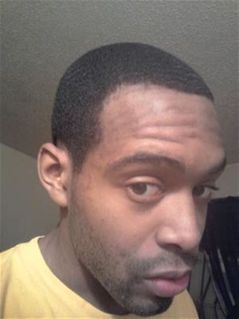 black male receding hairline hair loss pictures from cardaro