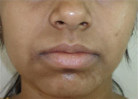 Pemutih Ketiak Kaskus 10 masalah kulit yang jarang dikenali dan sering diabaikan