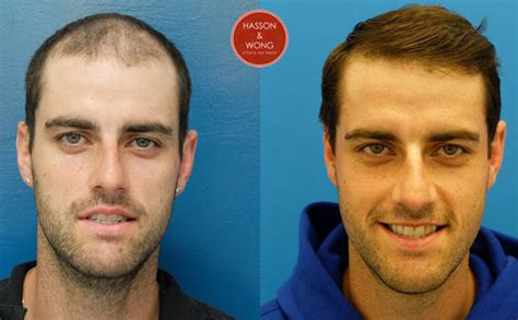 best hairtransplant in the world some of our favourite transformations hasson wong