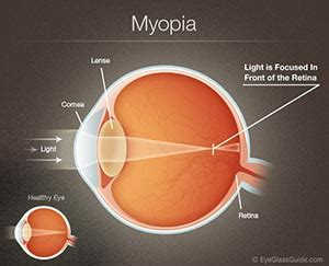 nearsighted (myopia) direct optical center