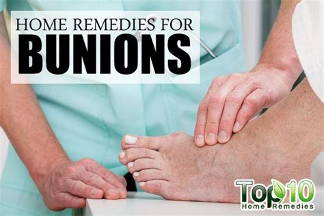 home remedies for bunions top 10 home remedies