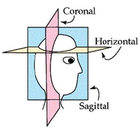 Vertical C Section Vs Horizontal by Coronal And Horizontal Sections