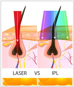 diode vs ipl pulsed light vs laser hair removal om hair