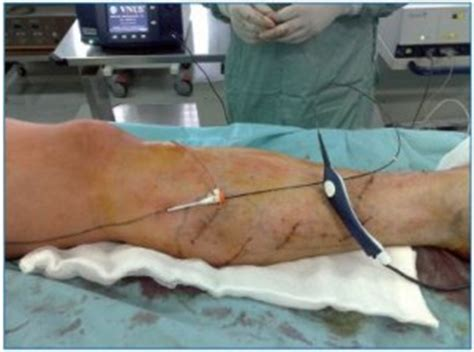 a retrospective study of 100 patients with varicose veins