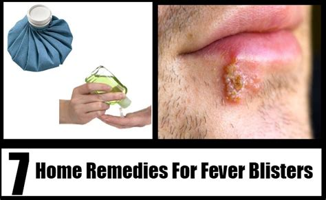7 fever blisters home remedies treatments and cures