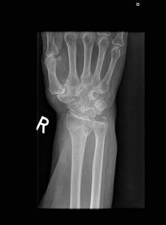 Distal radial and ulnar styloid fracture | Image