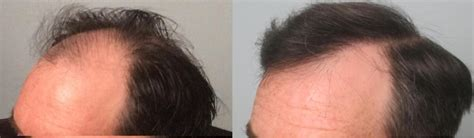 great frontal hair line 1000 graft fue hair transplants