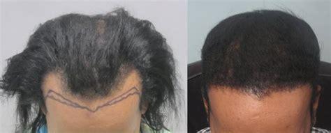 african american hair transplant african american hair transplant