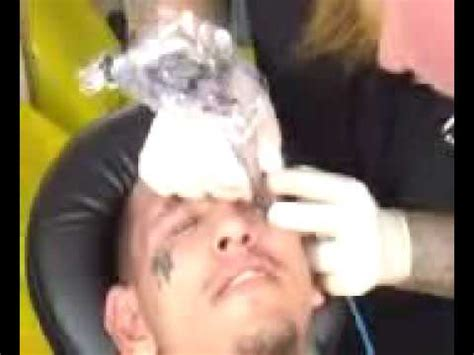 tattoo removal flint mi jesses eyelid part 1