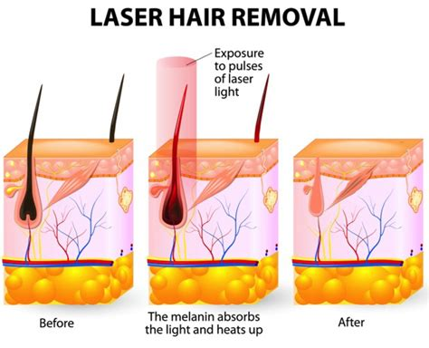 laser diode hair removal side effects lightsheer diode laser hair removal side effects 28 images lightsheer diode laser hair