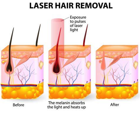 diode laser groupon lightsheer diode laser hair removal side effects 28 images lightsheer diode laser hair