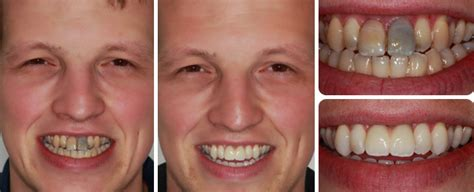 4 missing front teeth implants 187 missing front teeth kaizen dental implants