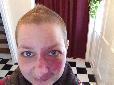 6 months after chemo hair growth every day recorded 187 archive 187 hair growth after chemo