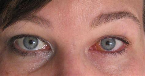eye swollen image gallery scleral edema