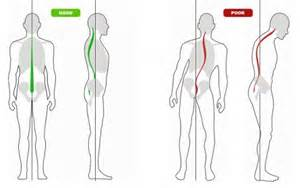 Plumb Line Assessment by Easy Home Posture Test Michael Lell Dc