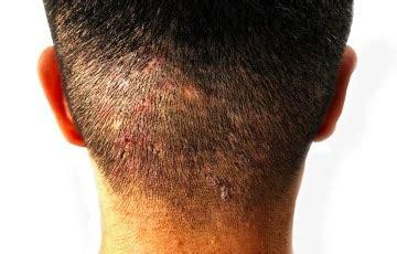 brufoli testa brufoli in testa cosa sono cause sintomi cura e