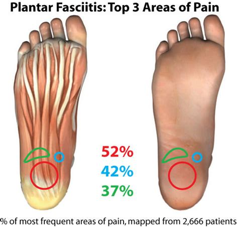 Nutrition Archives The Nrg Tribe What Causes Planters Fasciitis
