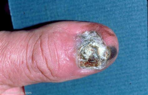 nail bed melanoma subungual melanoma nail bed