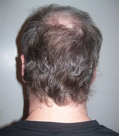pictures of the back of men heads file back of man s head jpg wikimedia commons