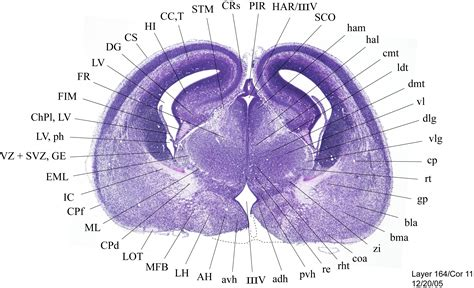 coronal section coronal section of brain anatomy images