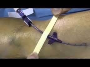 prise de sang sur chambre implantable porteaconfusion