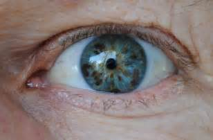 what is the rarest eye color rarest eye color in humans your tell a story