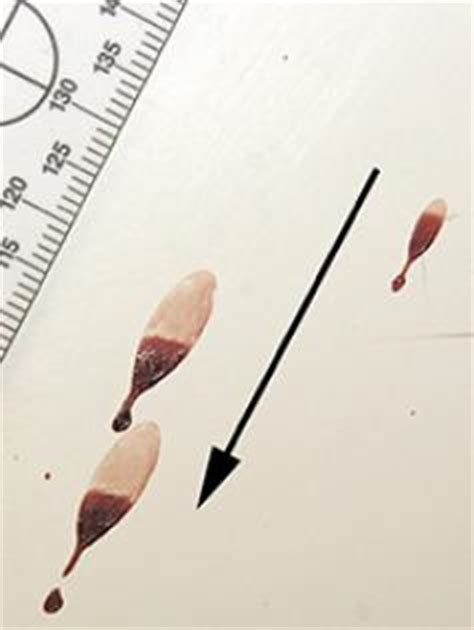 bloodstain pattern analysis lab report bloodstain pattern analysis